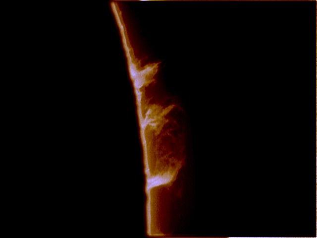 H-Alpha Prominences - 28th Aug 2005